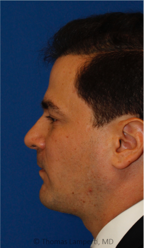 Combined Sliding Genioplasty, Neck Liposuction and Rhinoplasty after 3672441