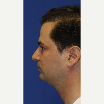Combined Sliding Genioplasty, Neck Liposuction and Rhinoplasty before 3672441