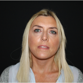 45-54 year old woman treated with Facelift after 3493956