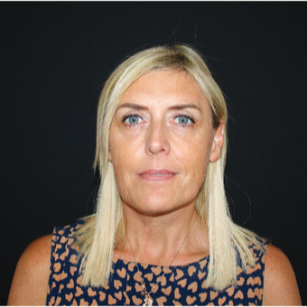 45-54 year old woman treated with Facelift before 3493956