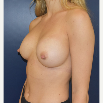 25-34 year old woman treated with Sientra Breast Implants after 3711201