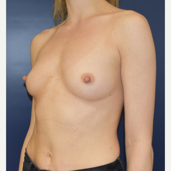 25-34 year old woman treated with Sientra Breast Implants before 3711201