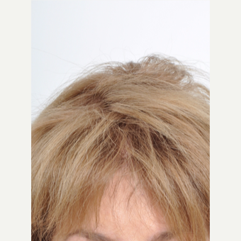 60 year old woman treated with PRP for Hair Loss after 2735810