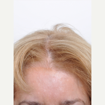 60 year old woman treated with PRP for Hair Loss before 2735810