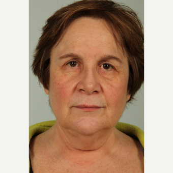 63 year old woman treated with Neck Lift before 3646942