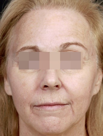 Fillers for Rejuvenation before 219217