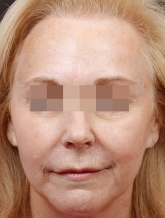 Fillers for Rejuvenation after 219217