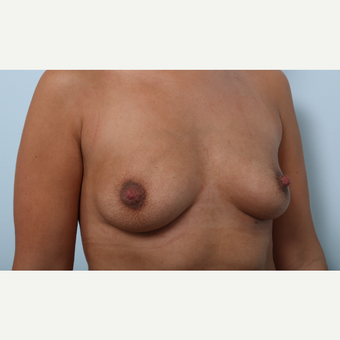 Breast Augmentation before 3345913
