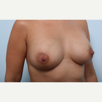 Breast Augmentation after 3345913