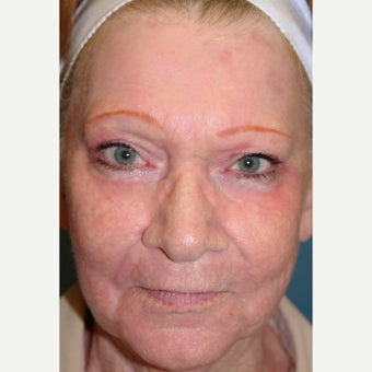 65-74 year old woman treated with Dermabrasion after 1779762
