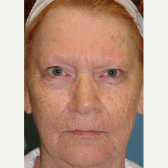 65-74 year old woman treated with Dermabrasion before 1779762