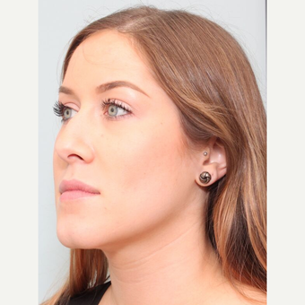 25-34 year old woman treated with Rhinoplasty before 3243505