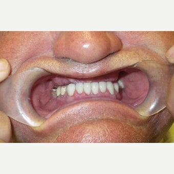 65-74 year old man treated with All-on-4 Dental Implants before 2454821