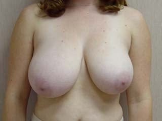 Breast Reduction Before before 1359943