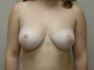 Breast Reduction Before after 1359943