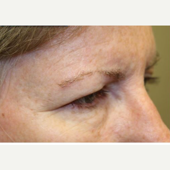 45-54 year old woman treated with Eyelid Surgery before 3406034