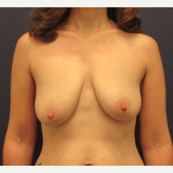 45-54 year old woman treated with Breast Lift before 3418566