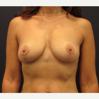 45-54 year old woman treated with Breast Lift after 3418566