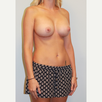 25-34 year old woman treated with Breast Implants after 3549688
