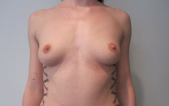 Breast Augmentation - 25 year old female, 590 cc silicone high profile implants before 1177517