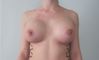 Breast Augmentation - 25 year old female, 590 cc silicone high profile implants after 1177517