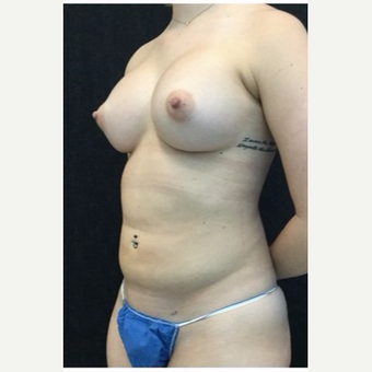 25-34 year old woman treated with Breast Augmentation after 3219294