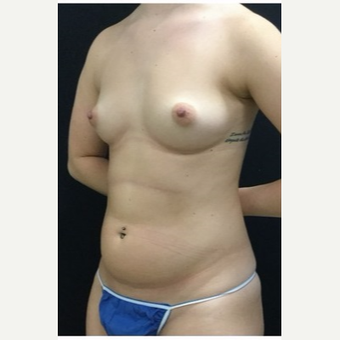 25-34 year old woman treated with Breast Augmentation before 3219294