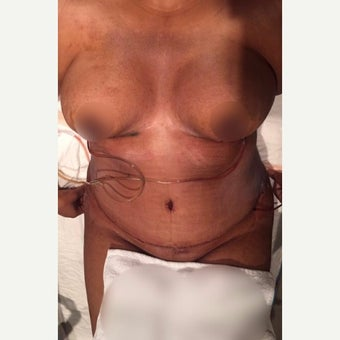 35-44 year old woman treated with Tummy Tuck, Breas lift and Liposuction after 3611264