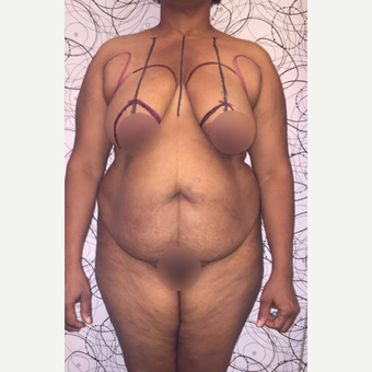 35-44 year old woman treated with Tummy Tuck, Breas lift and Liposuction before 3611264