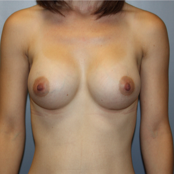 25-34 year old woman treated with Breast Augmentation after 3808770