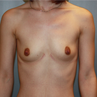 25-34 year old woman treated with Breast Augmentation before 3808770