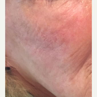 65-74 year old woman treated with Contour Thread Lift before 3501818