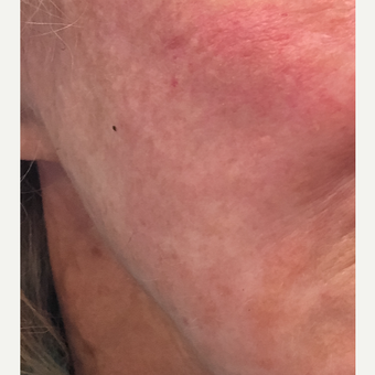 65-74 year old woman treated with Contour Thread Lift after 3501818