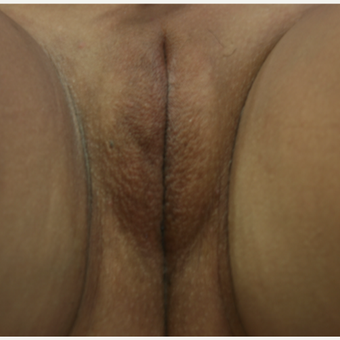 25-34 year old woman treated with Vertical Elliptical Incision of the Labia Majora before 2806959