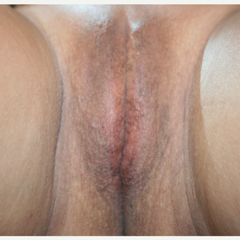 25-34 year old woman treated with Vertical Elliptical Incision of the Labia Majora after 2806959