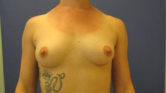 No breast scar submuscular saline breast augmentation before 1039748