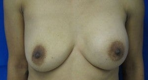 Breast Implant Revision before 3164440