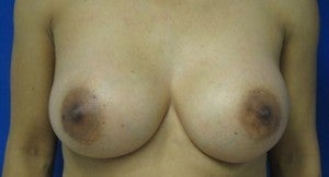 Breast Implant Revision after 3164440