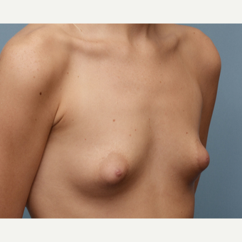 18-24 year old woman treated with Breast Implants before 3618421