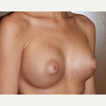 18-24 year old woman treated with Breast Implants after 3618421