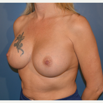 45-54 year old woman treated with Breast Augmentation after 3730513