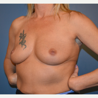 45-54 year old woman treated with Breast Augmentation before 3730513