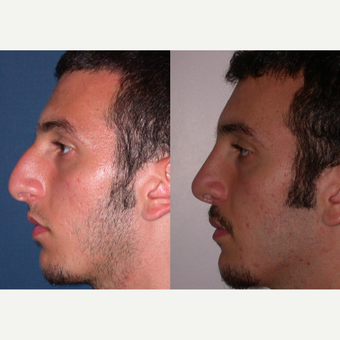 35-44 year old man treated with Rhinoplasty before 3521720