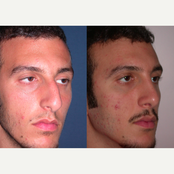 35-44 year old man treated with Rhinoplasty after 3521720