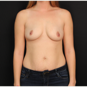 30 year old female with bilateral submuscular silicone implants placed through the underarm before 3522711