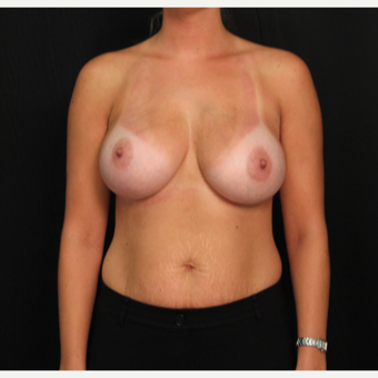 30 year old female with bilateral submuscular silicone implants placed through the underarm after 3522711