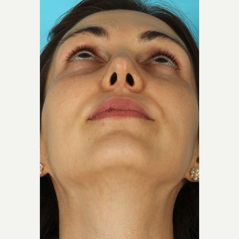 25-34 year old woman treated with Septoplasty after 3630411