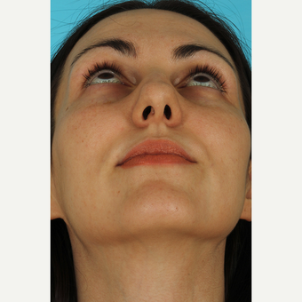 25-34 year old woman treated with Septoplasty before 3630411