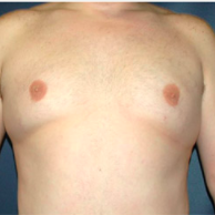 34 year old man treated with Male Breast Reduction after 3720905