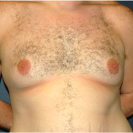 34 year old man treated with Male Breast Reduction before 3720905